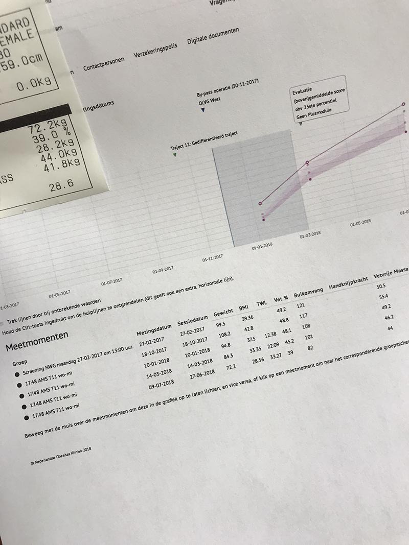 Het is negen maanden na de gastric bypass operatie en daarom tijd voor een update. Hoe gaat het mij, mijn losse vellen en mijn gewicht?
