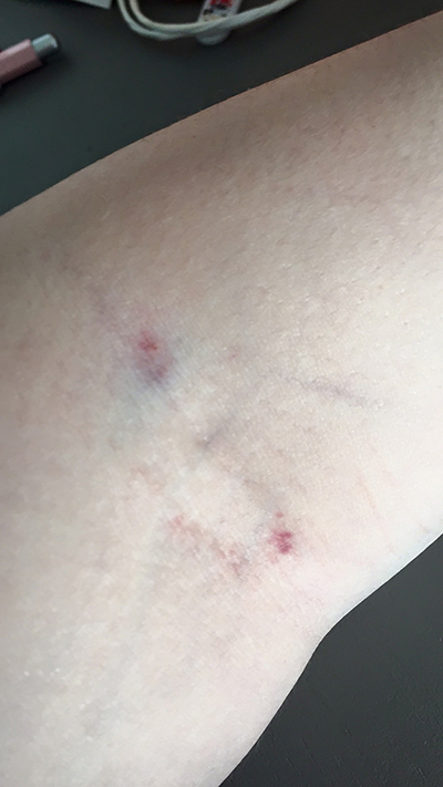 bloedprikken